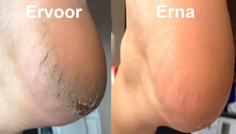 Voet Pedicure Ervoor-Erna